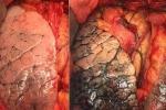 Dấu hiệu nhận biết ung thư phổi giai đoạn cuối
