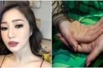 Hương Tràm tự bóc da tay rỉ máu: Bác sỹ cảnh báo hội chứng nguy hiểm chết người