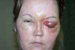 Cẩn thận bị loét giác mạc, mù mắt chỉ vì đeo kính áp tròng