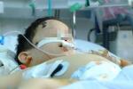 Đăk Lăk: Hai trẻ bị chó cắn nát mặt, đứt khí quản