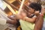 Mải chụp ảnh tự sướng, thiếu nữ bị bánh xe quấn tróc cả mảng da đầu