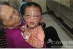 Bé trai 2 tuổi mặt sưng vù thâm tím, nghi bị bạo hành