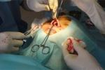 Cận cảnh bác sĩ rạch mũi, độn silicon làm đẹp cho chị em