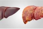 Thêm nguyên nhân gây ung thư gan nhiều người thường mắc