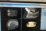 Hy hữu: Cấy ghép răng cho cụ bà 91 tuổi với nhiều bệnh lý phức tạp