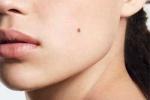 Dấu hiệu của bệnh ung thư da ai cũng nên biết