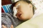 Bé gái 2 tuổi ở Nghệ An bị gà mổ mù mắt