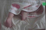 Tận dụng giày dép cũ của mẹ, bé gái bị biến dạng chân