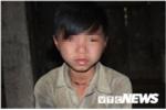 Những đứa trẻ bị 'giời hành' có hai 'của quý' ở Hà Giang: Đều mắc các bệnh thuộc nhóm bệnh hiếm