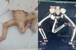 Kỳ lạ: Cậu bé sinh ra có 3 chân khác người