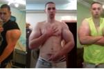 Tiêm chất tăng cơ bắp để có bắp tay 60cm, thanh niên 21 tuổi suýt mất mạng