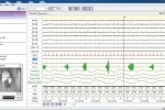 Giải mã các rối loạn giấc ngủ bằng phương pháp đa ký