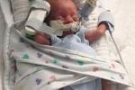 Kỳ diệu em bé sống sót khi sinh non ở tuần 22, làn da trong suốt nhìn thấy cả nội tạng