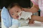 Người mẹ ân hận cả đời vì tẩy nốt ruồi cho con