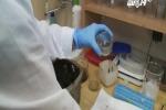 Phát minh mới dùng giun đất chữa ung thư phổi