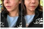 Phát hoảng với khuôn mặt biến dạng lồi lõm của hotgirl sau khi tiêm silicon