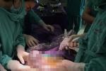 Đột nhiên đau bụng, đi khám mới biết bị ung thư buồng trứng