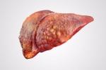 Không phải vàng da và ngứa, đây là 5 dấu hiệu ít ngờ tới 'tố cáo' gan cần được khám ngay