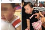 Bé 11 tháng tuổi bị cắn khắp mặt: Nhóm trẻ mầm non hoạt động chui