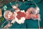 Tội nghiệp 2 bé sơ sinh vừa chào đời lộ nội tạng ngoài thành bụng