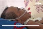 Được tiên lượng 90% tử vong, bệnh nhân bất ngờ hồi tỉnh kỳ diệu