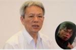 Từ vụ trấn áp thẳng tay David Dao trên máy bay: Rủi ro chờ người Việt sang Mỹ