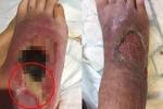 Kỳ lạ: Cấy 400 con giòi vào chân bị thương của người đàn ông để trị bệnh