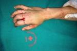 Nối lại 2 ngón tay đứt lìa cho bệnh nhân gặp tai nạn