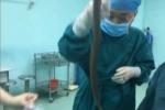 Luồn lươn sống vào cơ thể chữa táo bón, một bệnh nhân suýt chết