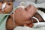 Những bệnh nhân tai nạn giao thông vỡ sọ phục hồi kỳ diệu bởi lọ thuốc trị tai biến thần kỳ