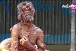 Video: Xót xa cảnh sống như 'địa ngục' của người đàn ông bị mọc trăm khối u trên người