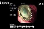 Trung Quốc: Bác sĩ dùng bao cao su lấy nắp chai bia ra khỏi dạ dày bệnh nhân
