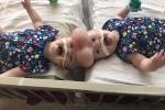 Phẫu thuật tách rời thành công cho cặp sinh đôi dính liền hiếm nhất thế giới