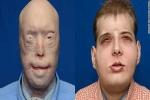 Ca cấy ghép mặt gây sửng sốt thế giới