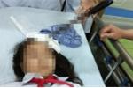 Bộ GD-ĐT yêu cầu xử lý nghiêm vụ nam sinh phóng dao cắm vào trán bạn