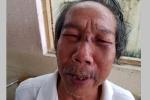 Lời kể của gia đình cụ ông bị bảo vệ chung cư đánh gãy sống mũi ở TP.HCM