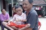Xót xa bé gái 8 tuổi mắc bệnh lạ chân tay không có ngón, cơ thể phồng rộp, lở loét