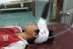 Bị dao găm vào trán, bé trai 12 tuổi chấn thương sọ não