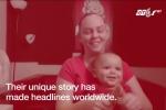 Chuyện lạ: Cặp song sinh không cùng cha, chẳng cùng mẹ