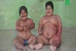 2 bé gái Ấn Độ phải cắt bớt dạ dày để giảm cân