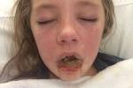 Dị ứng thuốc giảm đau, cô bé 10 tuổi tạo nên kỳ tích khi đánh thắng cả tử thần