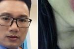 MC Minh Tiệp của VTV bị tố bạo hành, đánh đập em vợ suốt 5 năm