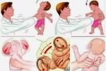 Vụ giúp việc tung hứng bé 1 tháng tuổi: Những nguy cơ sức khỏe em bé phải đối mặt