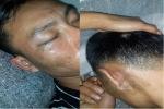 Nam thanh niên tố bị công an xã ở Hà Tĩnh tát đến thủng màng nhĩ