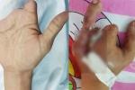 Nam thanh niên cắt ngón chân ghép vào bàn tay bị cụt