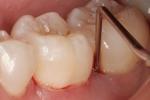 Nhổ răng số 8 có nguy hiểm không?