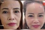 Video: Cô dâu 62 tuổi phẫu thuật thẩm mỹ, nhan sắc mới trẻ trung như 40 tuổi