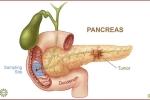 Ung thư tuyến tụy: Phẫu thuật sớm tăng tỉ lệ thành công cao