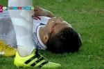Clip: Va chạm khiến Quang Hải chảy máu mắt, người hâm mộ xót xa