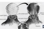 Ca ghép đầu người ở Trung Quốc: Thử nghiệm thành công, chuẩn bị ghép trên người sống